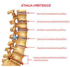 cstanja hrbtenice